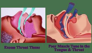 Drawing showing cause of sleep apnea