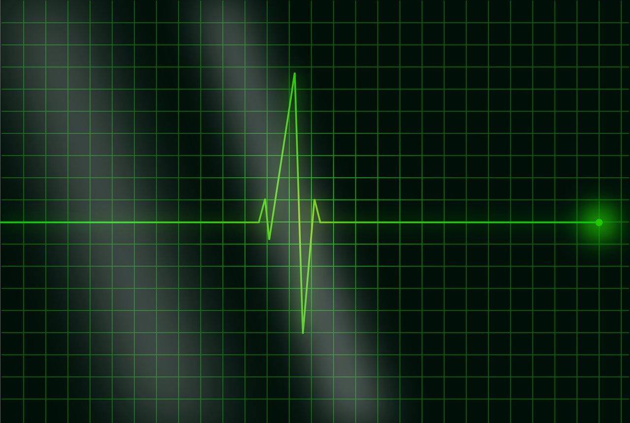green coloured ECG spike on black background